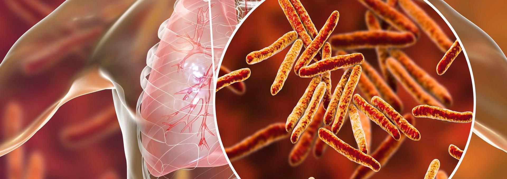 Tuberculosis Testing - info-hero