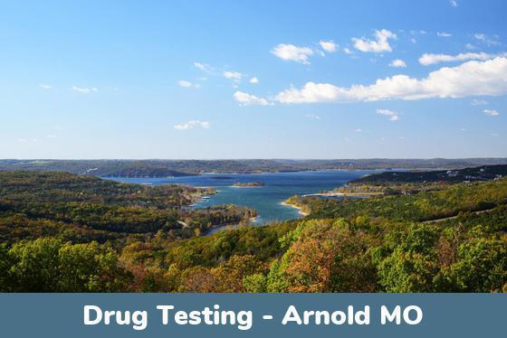 Arnold MO Drug Testing Locations